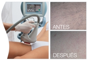 FOTODEPILACION SORISA Beauty Solutions